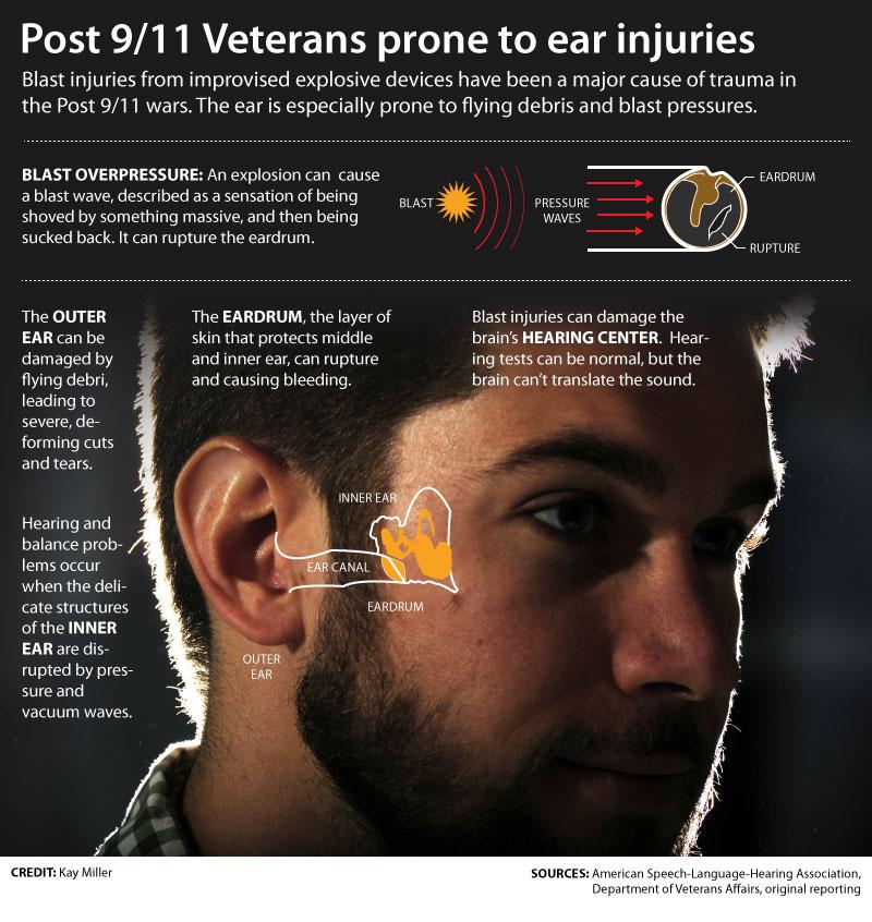 Va disability hearing loss calculator metric